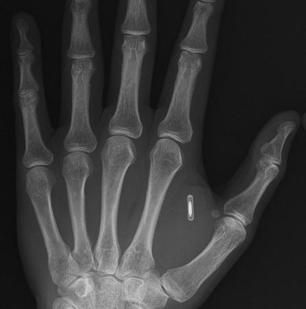 rfid-hand